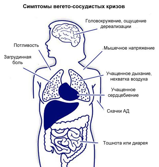 симптомы кризов при ВСД