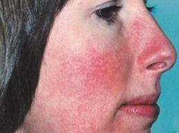 гиперемия на лице у женщины