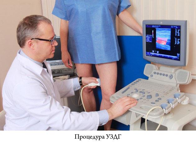 процедура допплерографии