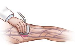 УЗДГ исследование сосудов ноги
