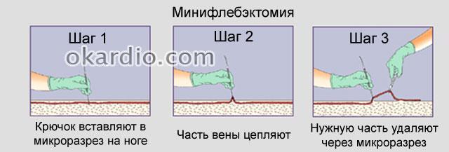 техника выполнения минифлебэктомии