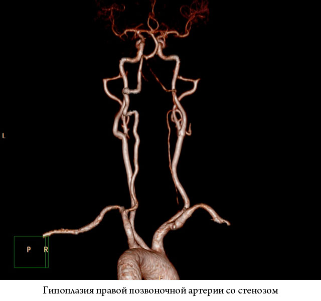 гипопластическая правая позвоночная артерия со стенозом в сегменте V1 на компьютерной томографии
