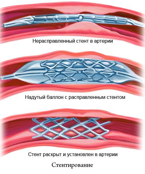 стентирование сосуда
