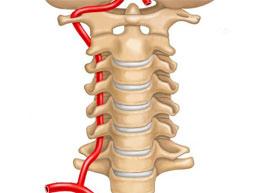 правая позвоночная артерия