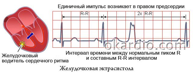 желудочковая экстрасистола на ЭКГ