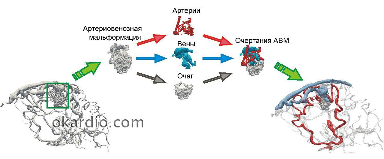 Артериовенозная мальформация: головного мозга, спинного и других ...