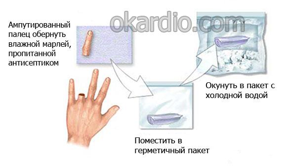 сохранение ампутированного пальца