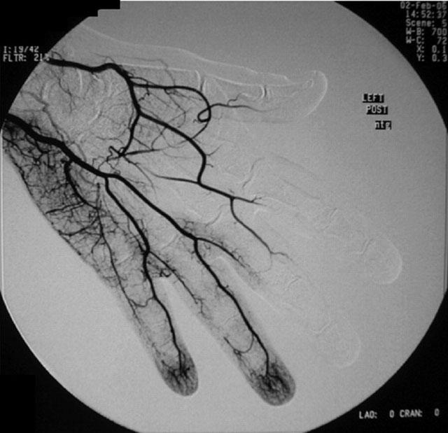 ангиограмма руки, пораженной болезнью Бюргера