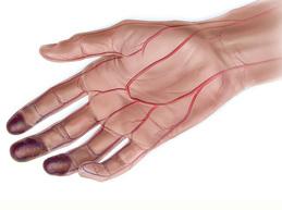 кисть руки, пораженная болезнью Бюргера