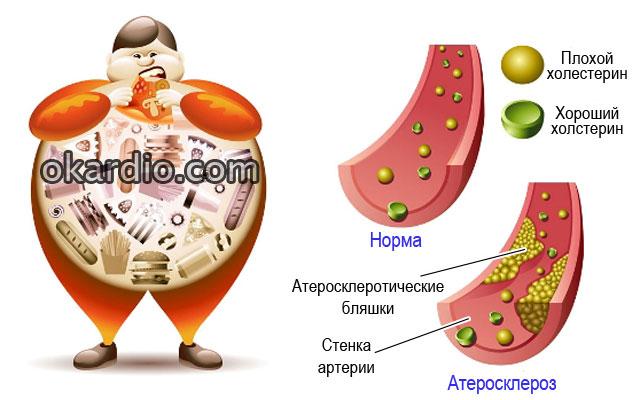 неправильное питание, хороший и плохой холестирин