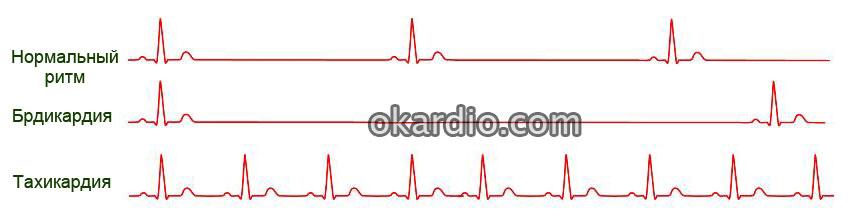Атеросклеротическая болезнь сердца: причины, симптомы, лечение ...