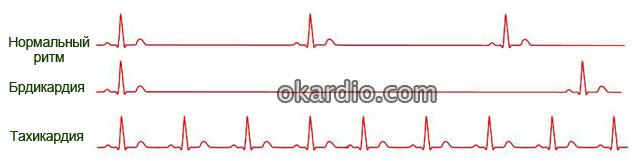 аритмия на ЭКГ