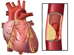 атеросклероз коронарной артерии сердца