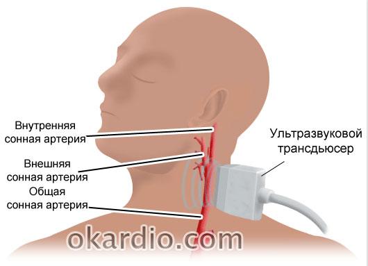 допплеровское сканирование сосудов шеи