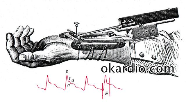 сфимограф и сфигмограмма