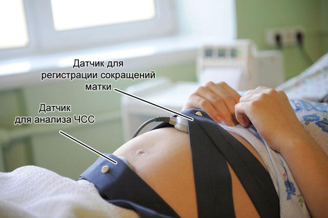 кардиотокография