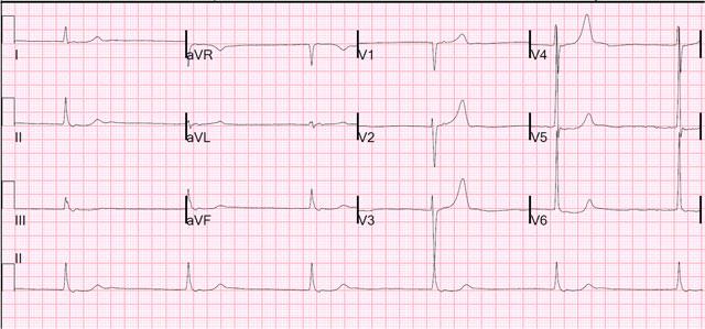 Низкий пульс при нормальном давлении: причины, диагностика и лечение