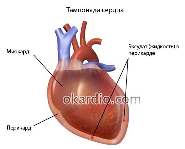 изображение тампонады сердца