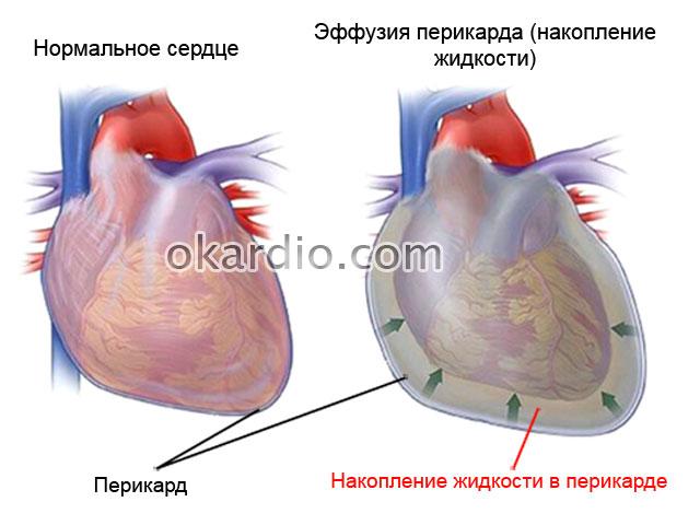 схема тампонады сердца