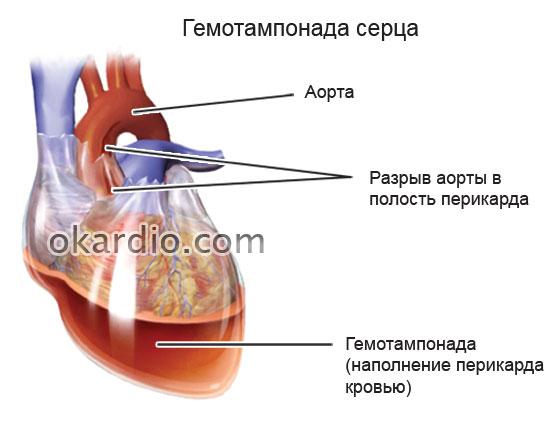 объяснение гемотампонады сердца