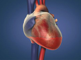гемотампонада сердца