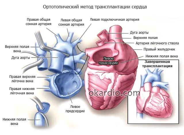 ортотопический метод трансплантации сердца