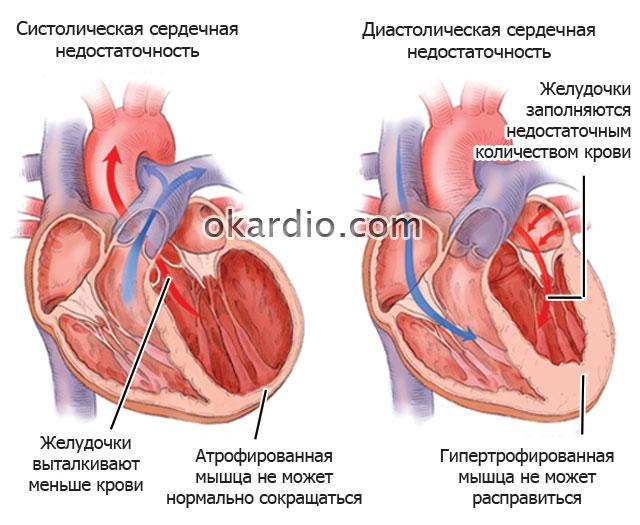 систолическая и диастолическая сердечные недостаточности