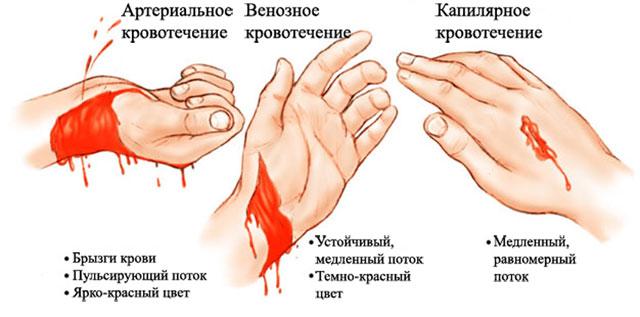 три вида кровотечений