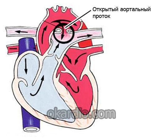 сброс крови при открытом аортальном протоке