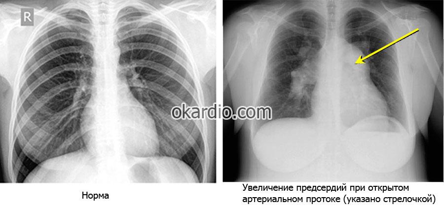 Открытый артериальный проток (ОАП): у детей и взрослых, причины ...