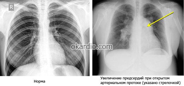 рентген снимок при открытом артериальном протоке