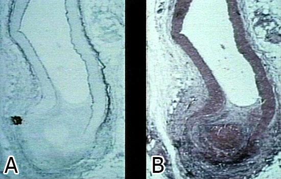 изменения сосуда при узелковом периартериите