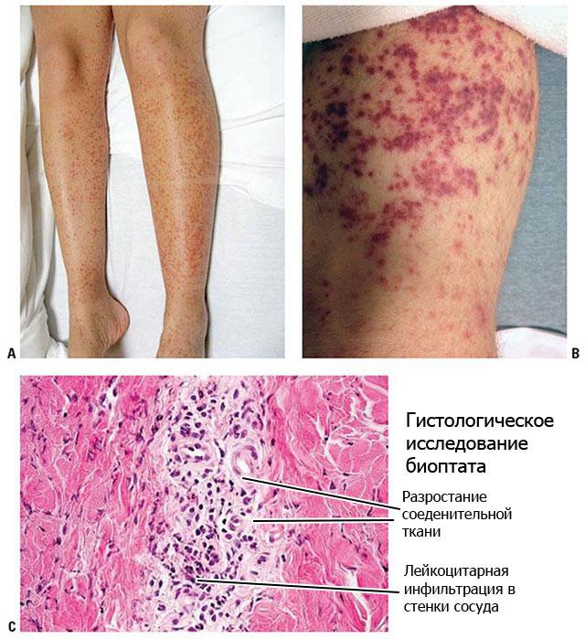 симптомы узелкового периартериита