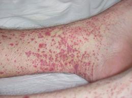 высыпания на коже при узелковом периартериите