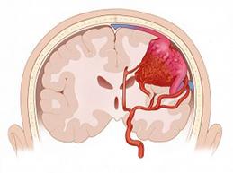 Причины субарахноидального кровоизлияния, характерные симптомы и лечение