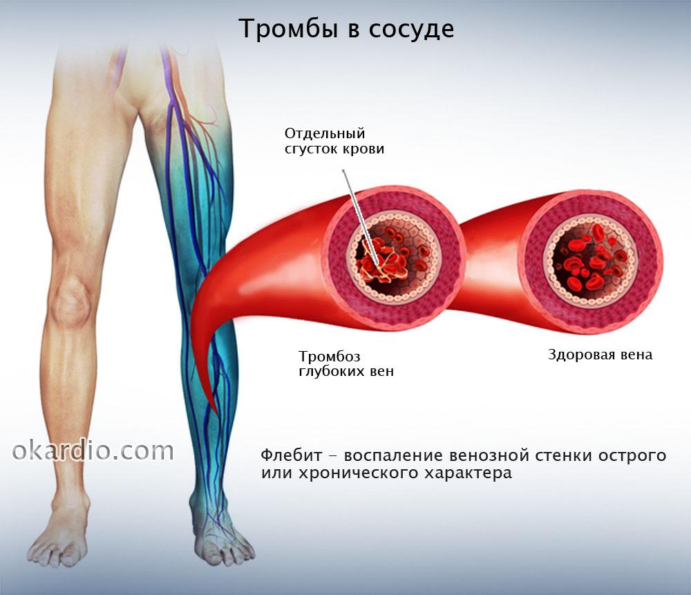Признаки тромба в ноге причины и лечение патологии прогноз