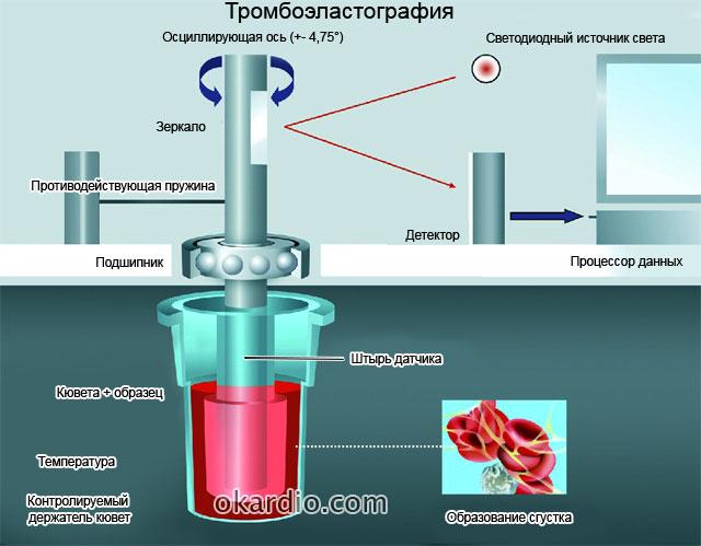 тромбоэластография