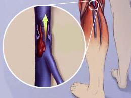 Причины, симптомы и лечение флебита нижних конечностей
