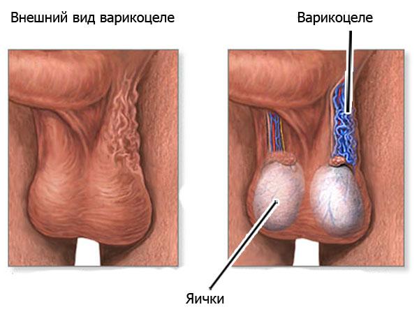 варикоцеле