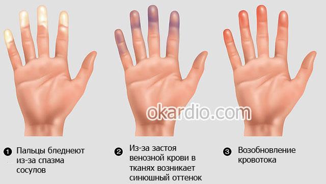 симптомы болезни Рейно