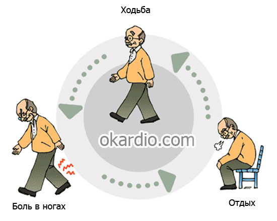 симптомы перемежающей хромоты