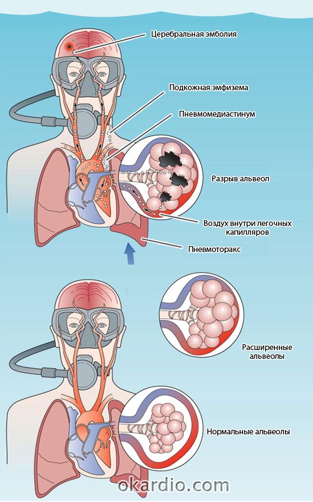 баротравма легких в результате быстрого поднятия с глубины