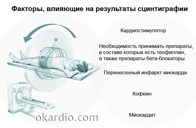 Сцинтиграфия миокарда: суть исследования, как оно проходит, показания