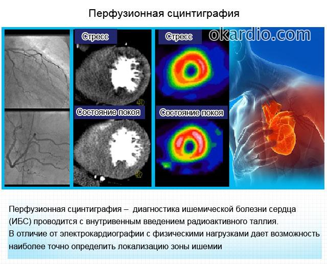 перфузионная сцинтиграфия