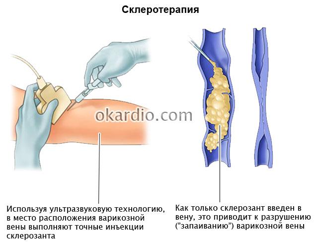 Кроссэктомия: что это, показания, как проходит операция ...