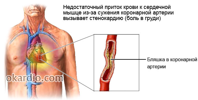 нитроглицерин при инфаркте миокарда