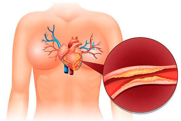 полный обзор атеросклеротического кардиосклероза: причины лечение прогноз