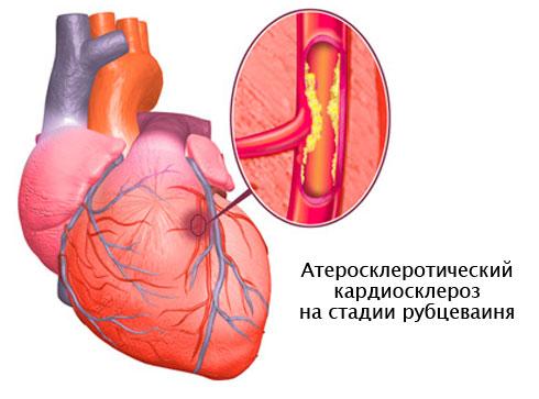 Атеросклеротический кардиосклероз: суть патологии, причины ...