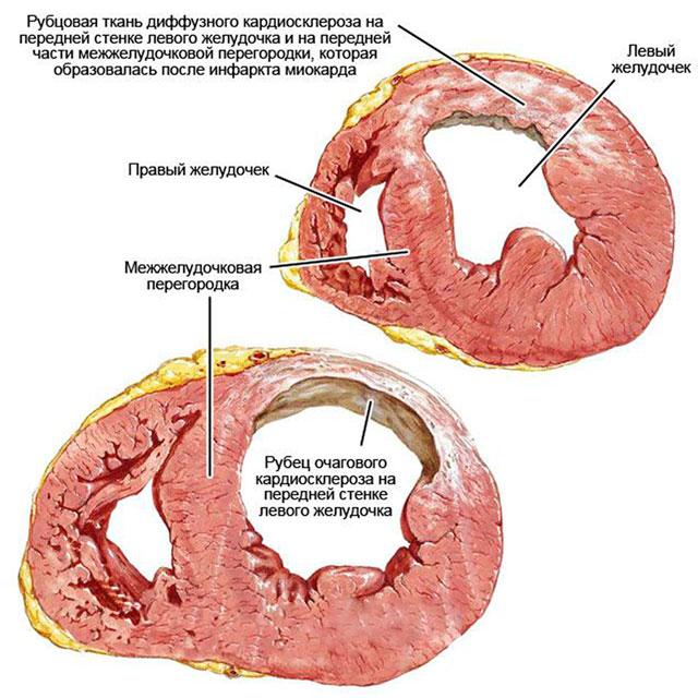 рубцовая ткань диффузного кардиосклероза