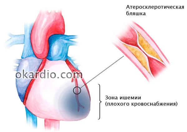 образование атеросклеротической бляшки внутри коронарной артерии
